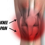Knee Pain
