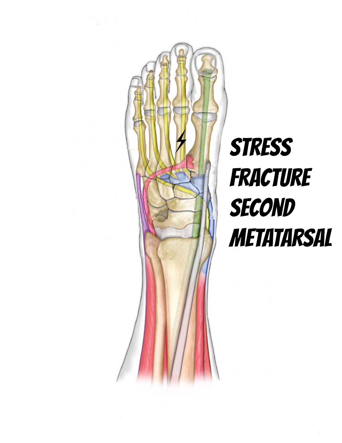 Stress Fracture Of the Second Metatarsal - Self Help Tips to ...