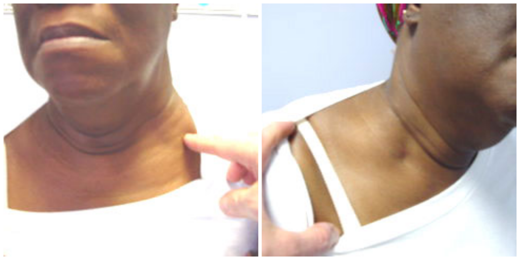 Supraclavicular Swelling