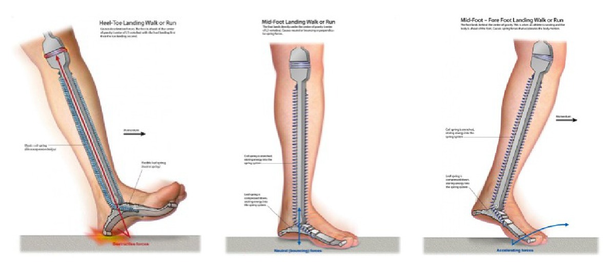 Heel Spurs – Self Help Tips, Treatment and Prevention From The ...