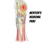Morton&#039;s Neuroma Pain