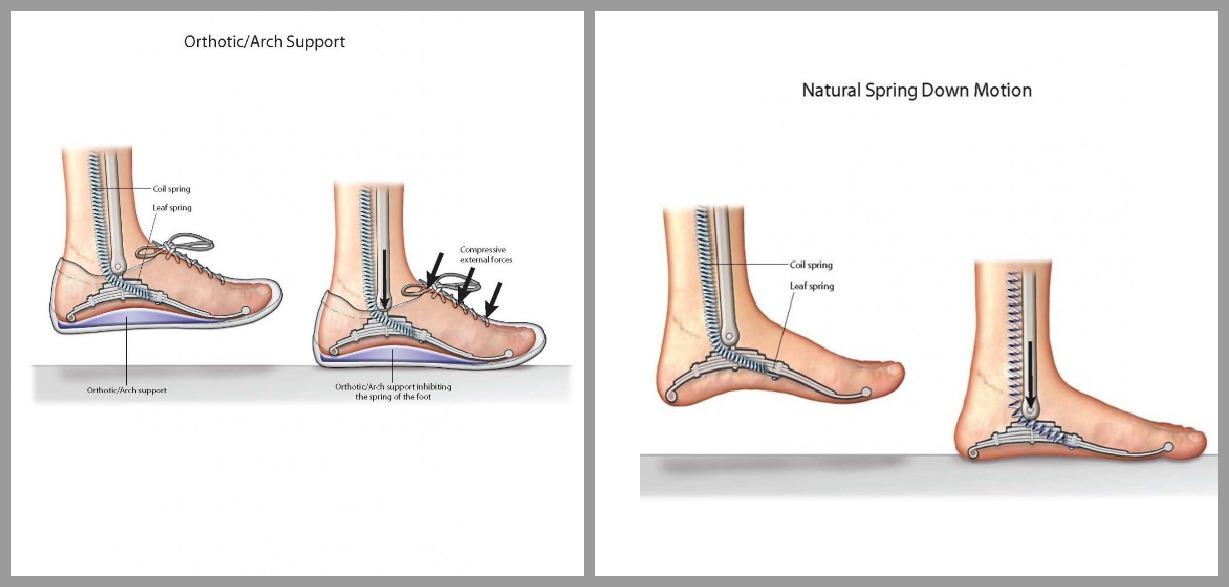 morton neurom osteopathie