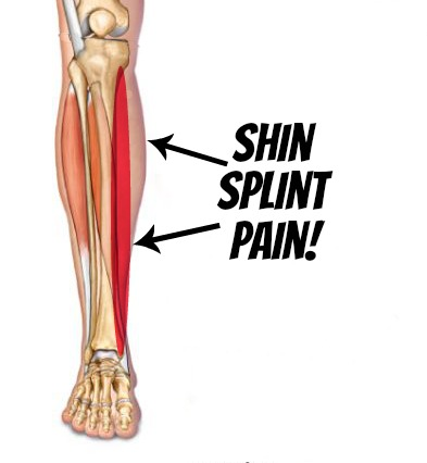 Shin Splints Self Help Tips Treatment And Prevention From The