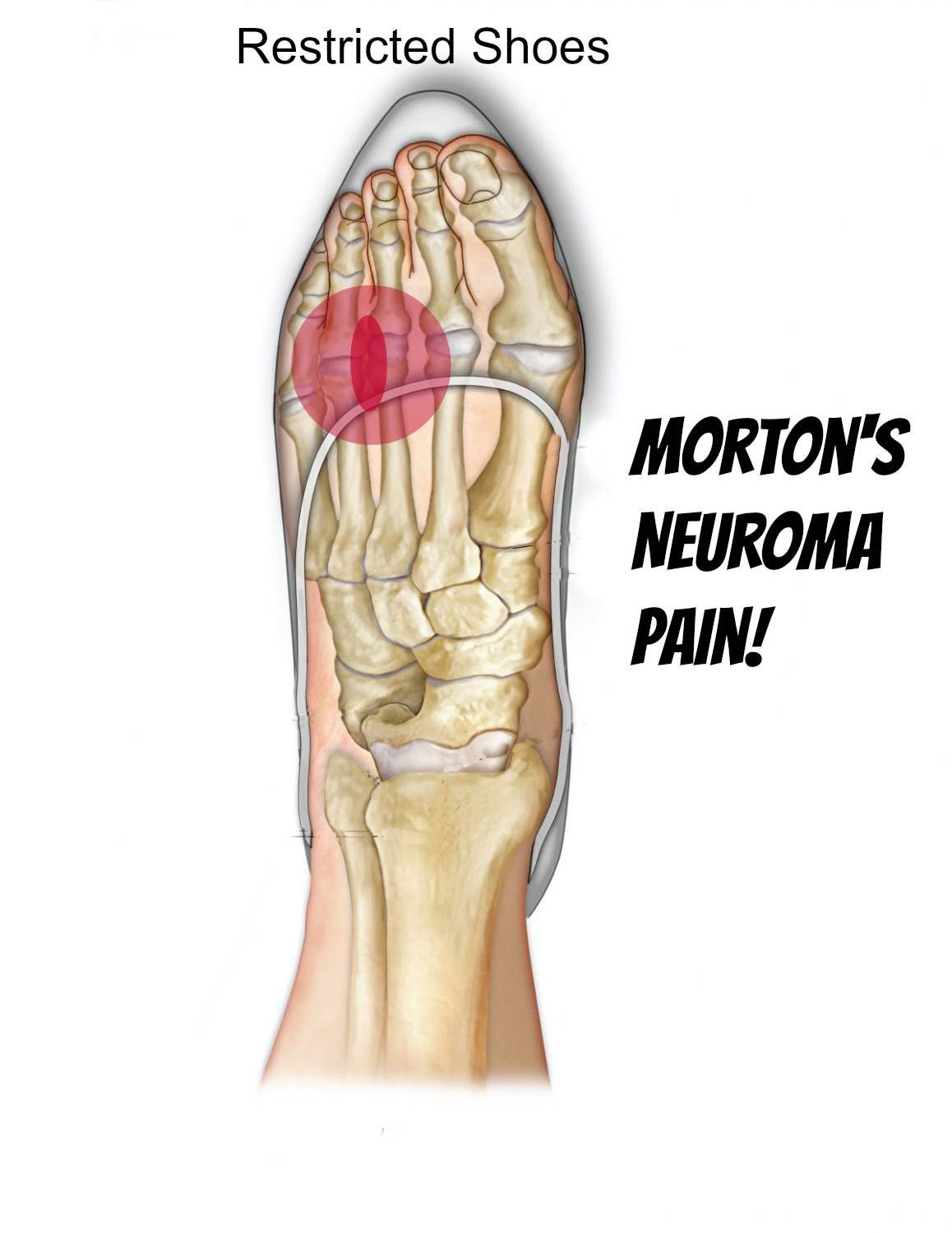 Morton\'s Neuroma - Self Help Tips, Treatment and Prevention From The ...