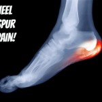 Heel Spur Pain